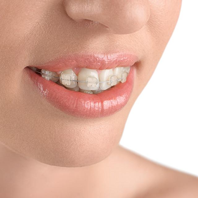 Orthodontiste Bayeux